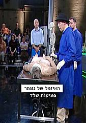 Watch Full Movie - האזמל של גונתר - פציעות שלד